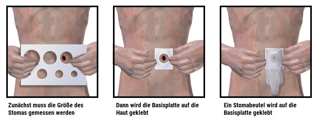 Wie nutzt man einen Stoma Beutel. Foto: Bruce Blaus (CC BY-SA 4.0)