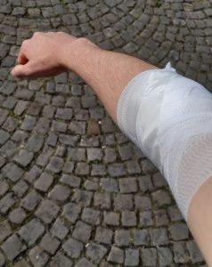 Verband nach der Blutspende